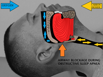 Sleeper Recliner For Sleep Apnea - Airway obstruction